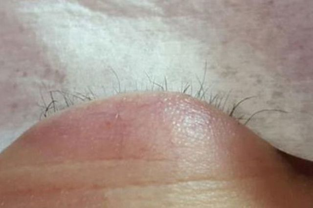Эффект после наращивания ресниц