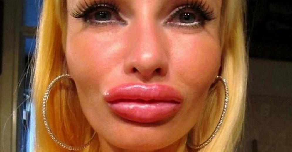 Силиконовые губы (фото)