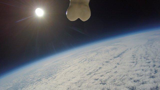 Протез яичек в открытый космос (5 фото)